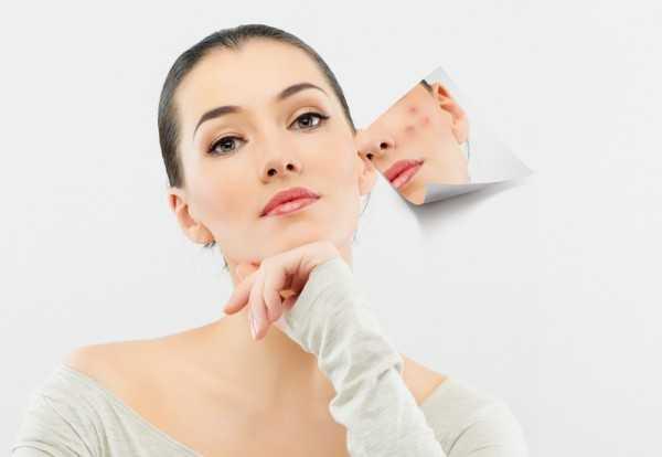 Ваш рацион и наличие вредных привычек также непосредственно влияет на состояние кожи и может оказаться причиной появления прыщей