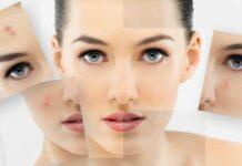 Вполне возможно устранить воспаления кожи и скрыть симптомы за короткий промежуток времени