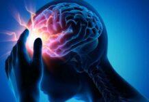 Что такое эпилепсия?